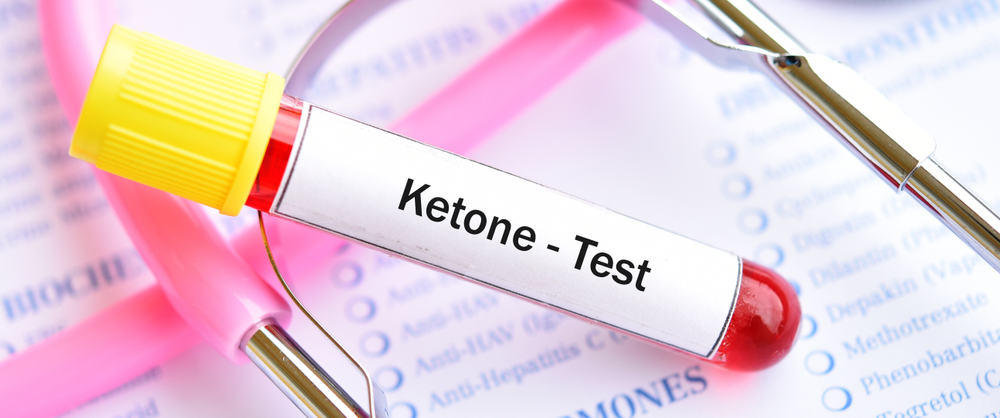 ketone tracking test ketones